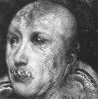 Cicatriz Nosferatu