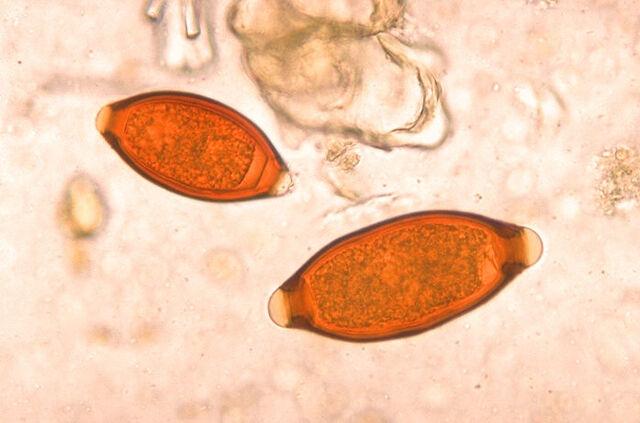 File:Eggs of Trichuris trichiura and Trichuris vulpis 06G0018 jpg lores.jpg