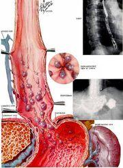APEF 20081011052133 varizes do esofago