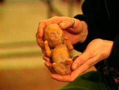 Alien fetus model